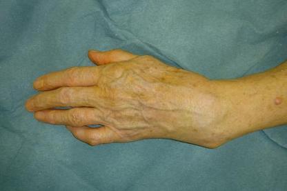 S quelles des fractures du poignet - Peut on casser un pel ...